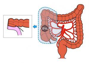 結腸右半切除