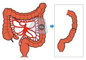 結腸部分切除