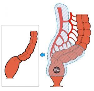 直腸前方切除