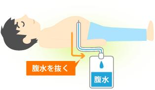 1. 腹水を抜く