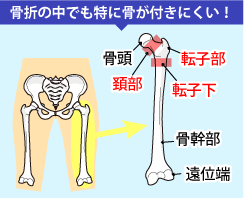 大腿骨骨折は骨折の中でも骨が付きにくい