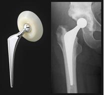 人工物に置き換える方法(人工骨頭挿入術、人工股関節全置換術)