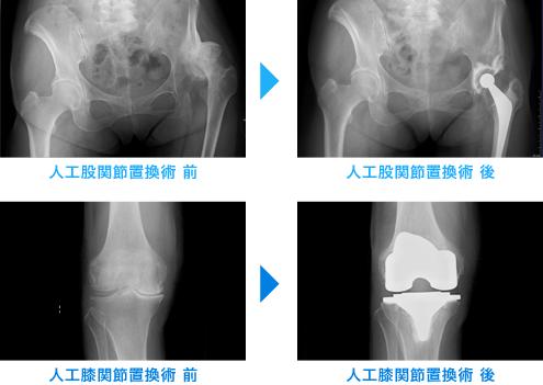 人工膝関節置換術 前後