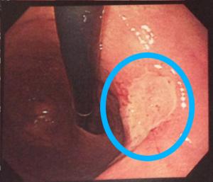 潰瘍を伴う胃がん