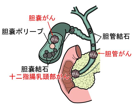 胆管がんとは?