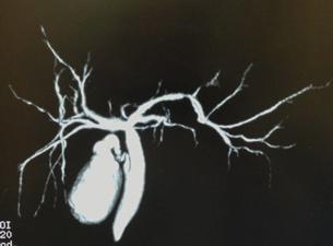 DIC-CTによる胆嚢、胆管